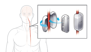 SetPoint's nerve stimulator (center) is surgically implanted on the vagus nerve (red), in the neck or under the collarbone, in a relatively simple procedure, and held in place by a protective, snap-on pod. The actual stimulator is an inch long.